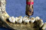 wiercenie zębów